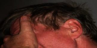 Apa Sakit Kepala TTH itu