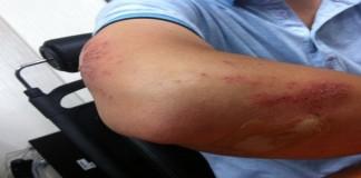 Apa itu Penyakit Kulit Dermatitis?